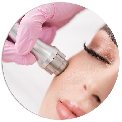 Microdermabrasion (Alta Frecuencia)